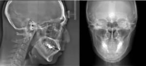 歯科矯正骨格診断